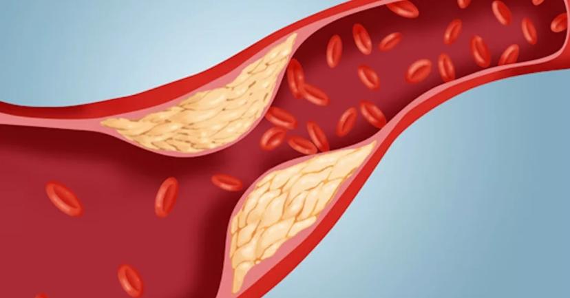 норма холестерина после 55 лет у женщин