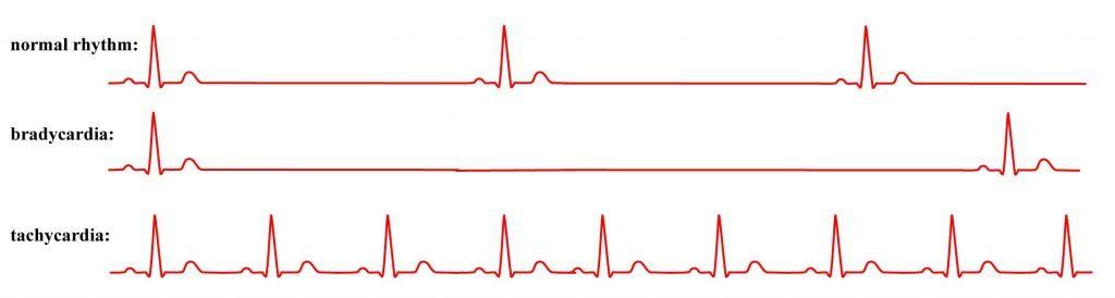 норма сердцебиения у женщин в 60