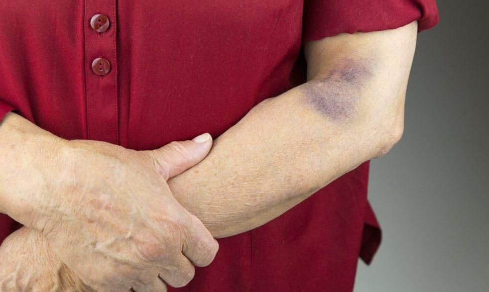 норма тромбоцитов у женщин 60 лет
