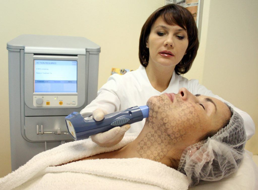 подтяжка лица после 50 лет без операции